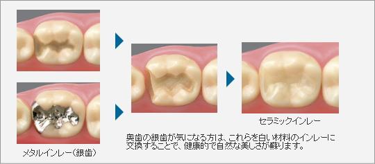 image-shinbi02