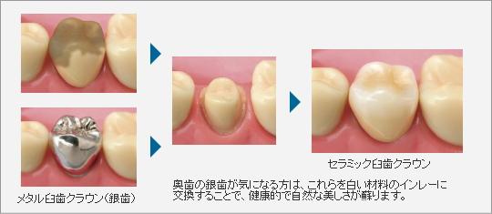 image-shinbi03
